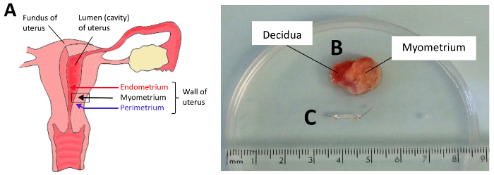 contractility measurements of human uterine smooth