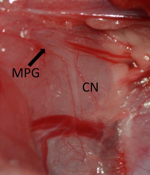 disfunción eréctil del nervio pellizcado