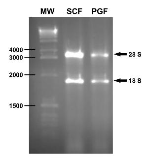 Relacion entre dna rna y protein as para bajar de peso