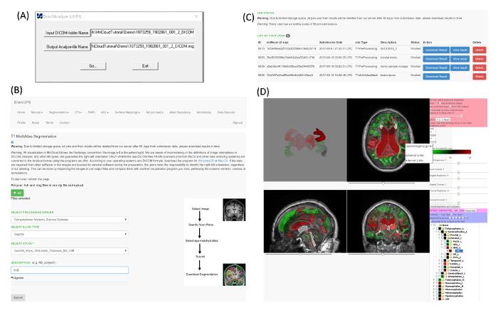 Whole-brain Segmentation and Change-point Analysis of Anatomical ...