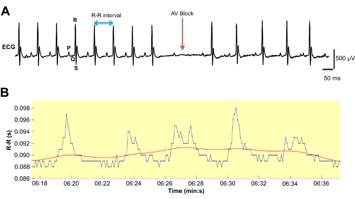 Simultaneous Video-EEG-ECG Monitoring to Identify