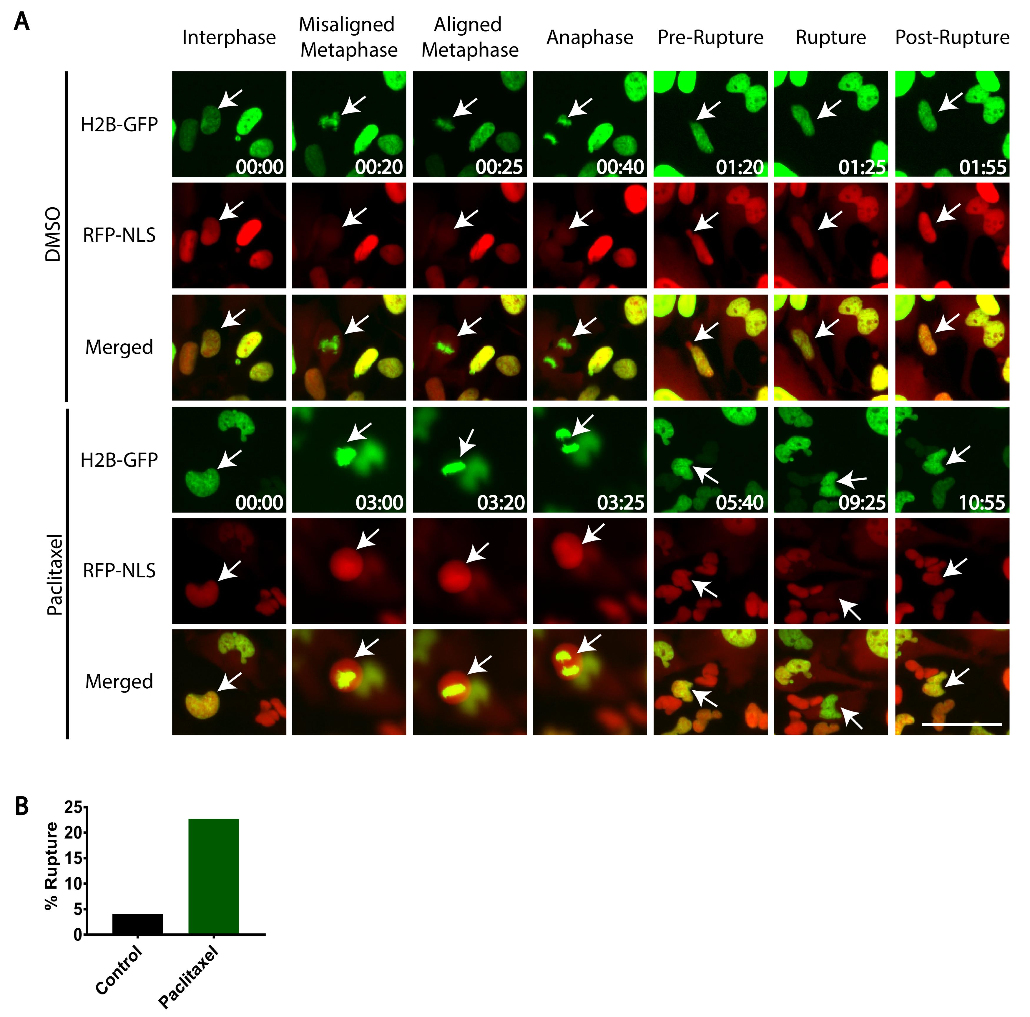 ... a fração de células (n   100 por condição) que mostre a ruptura do  envelope nuclear após a mitose 51f5928273b