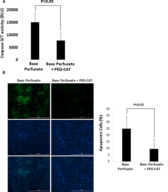 A Small Animal Model of Ex Vivo Normothermic Liver Perfusion | Protocol