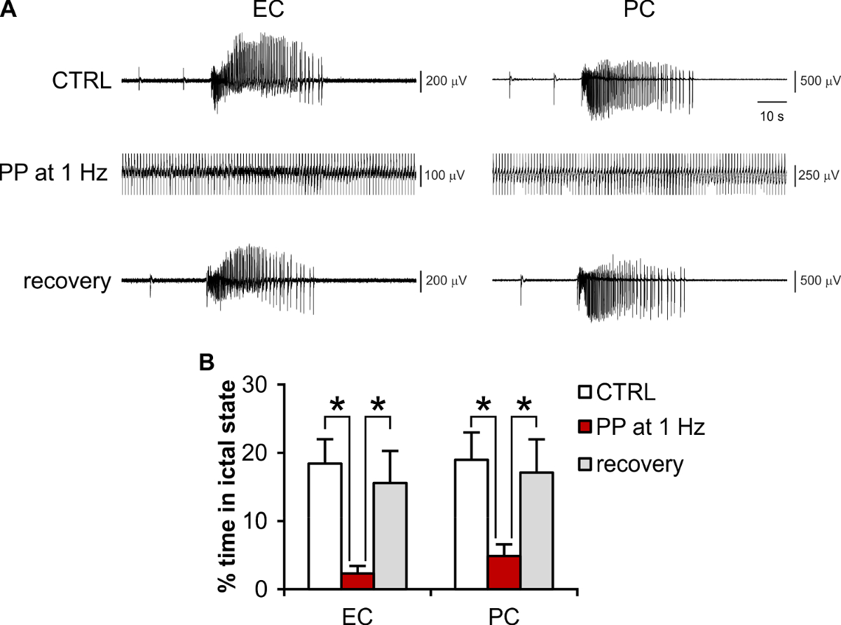 Recording and Modulation of Epileptiform Activity in Rodent Brain