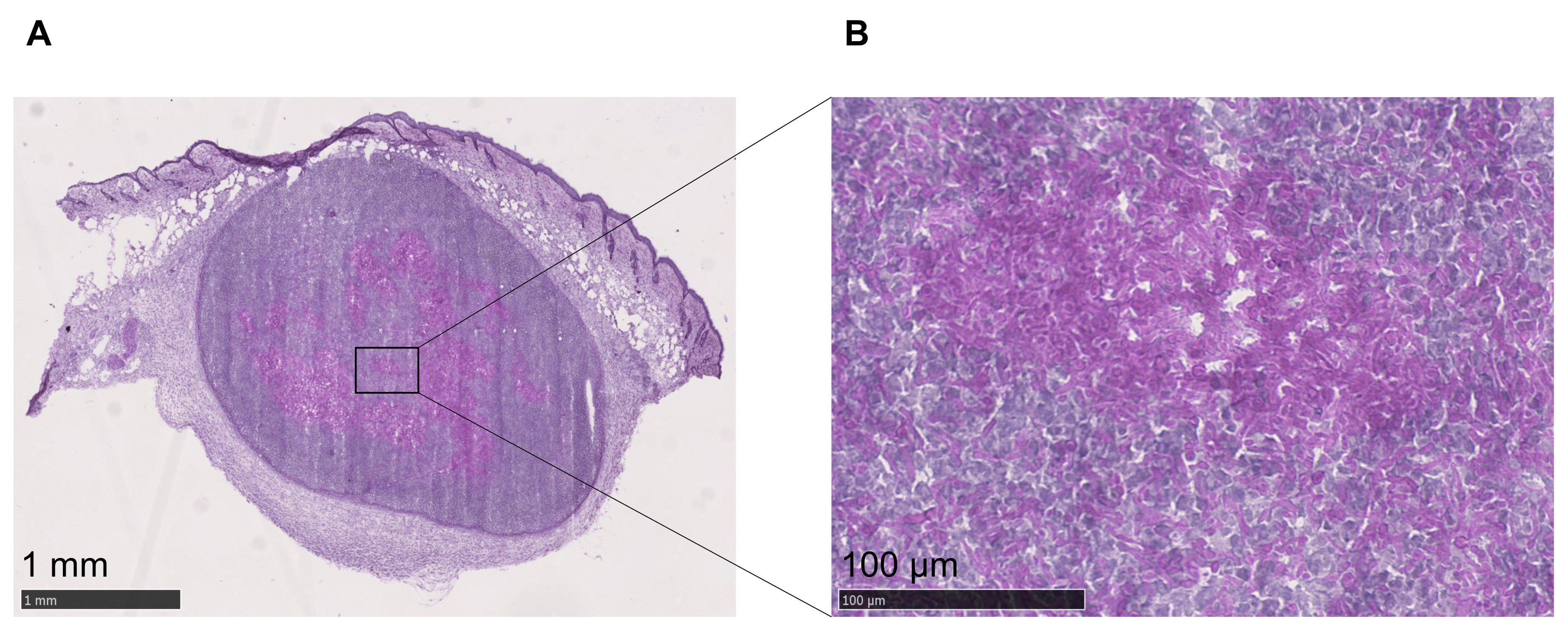 Deep Dermal Injection As A Model Of Candida Albicans Skin Infection