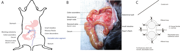 Murine Distal Colostomy, A Novel Model of Diversion Colitis