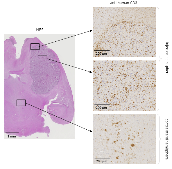 Stereotactic Adoptive Transfer of Cytotoxic Immune Cells in