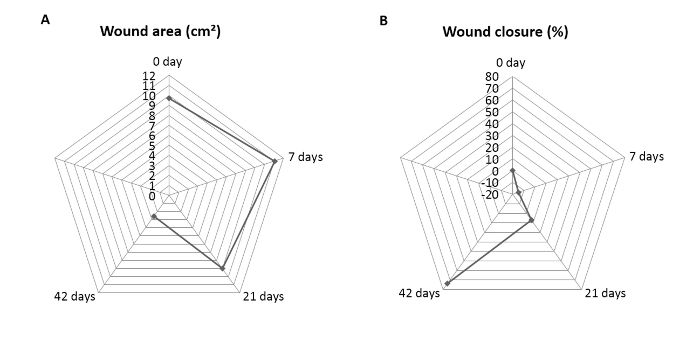 Severe Burn Injury in a Swine Model for Clinical Dressing