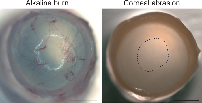 Corneal Epithelial Abrasion with Ocular Burr As a Model for
