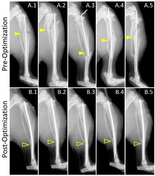 Pré- et post-optimisation de la génération de la fracture. Ces panneaux  montrent des radiographies latérales des fractures représentatifs de  préoptimisation ... 60eb5df432f