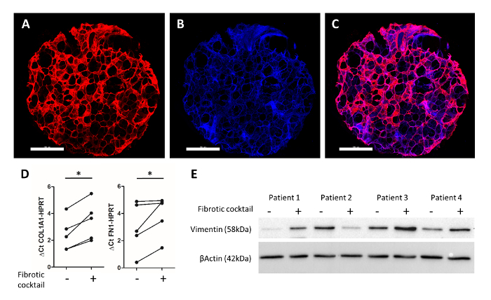 Generation of Human 3D Lung Tissue Cultures (3D-LTCs) for Disease