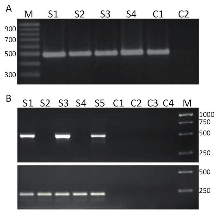 Detection of Tilapia Lake Virus Using Conventional RT-PCR