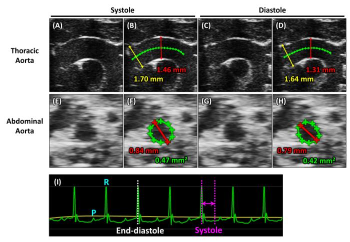Hoe nauwkeurig is echografie dating op 9 weken