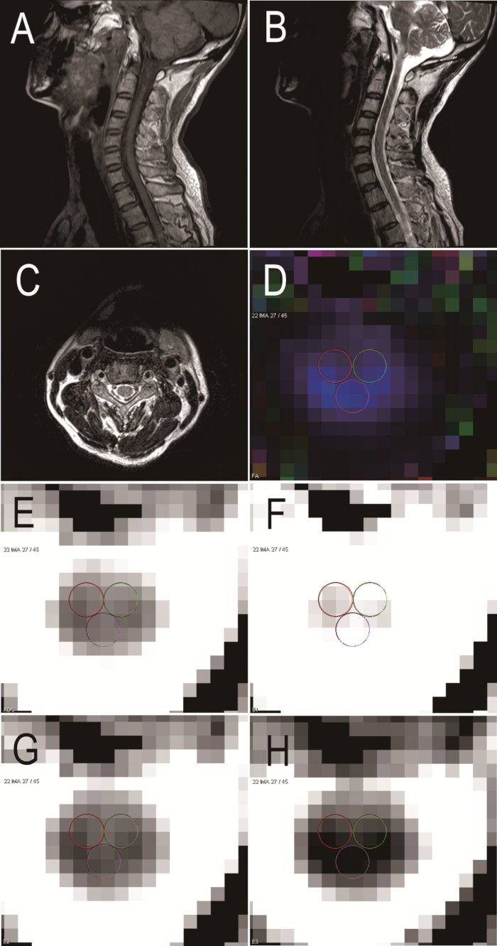 Diffusion Tensor Magnetic Resonance Imaging in Chronic Spinal Cord
