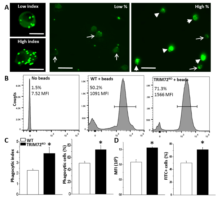 Alveolar Macrophage Phagocytosis and Bacteria Clearance in