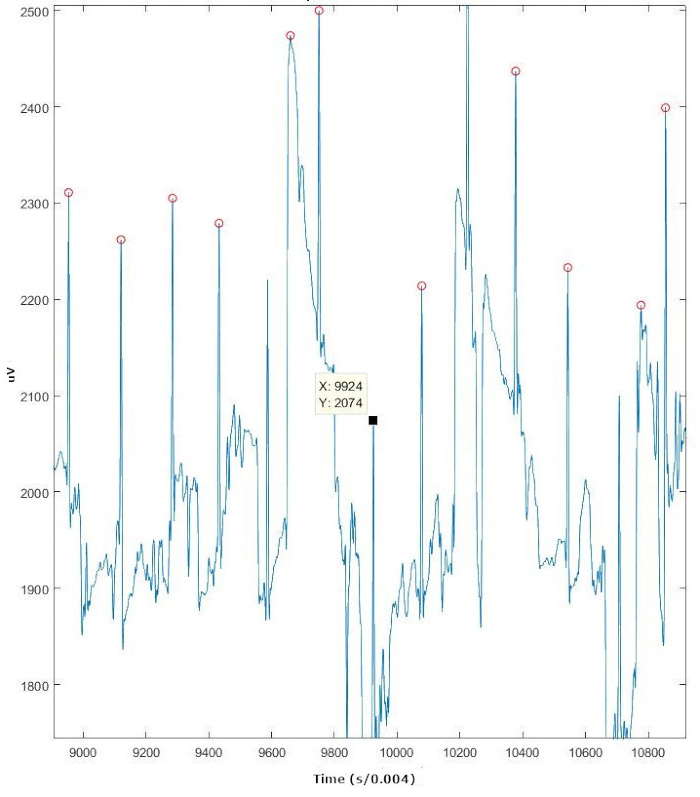Calculating Heart Rate Variability from ECG Data from Youth