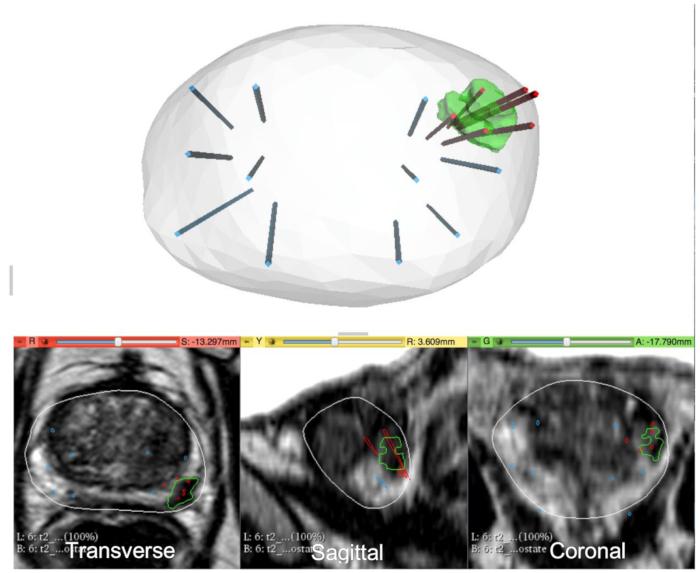 Pautas para la biopsia de próstata