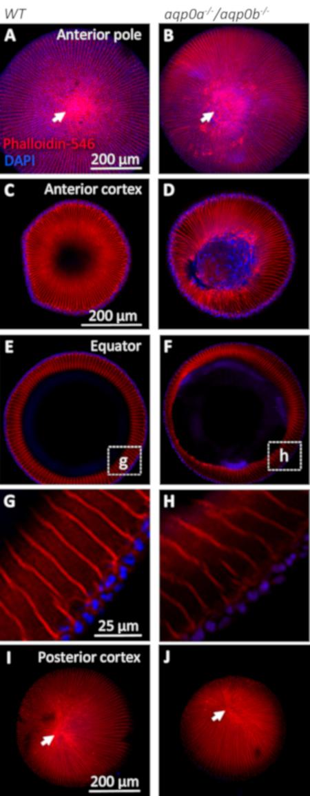 d3b7bd766 Figura 5 : Morfologia da lente adulta in vitro. As lentes excisadas, fixas  e permeabilizadas de peixes com mais de 23 mm de comprimento padrão foram  ...