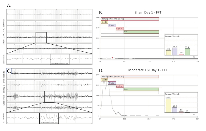 Use of a Wireless Video-EEG System to Monitor Epileptiform