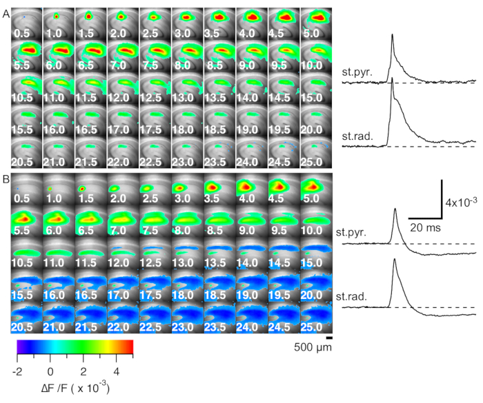 Wide-field Single-photon Optical Recording in Brain Slices