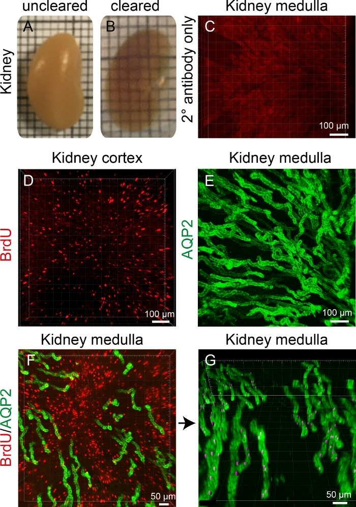 Optical Clearing and Imaging of Immunolabeled Kidney Tissue