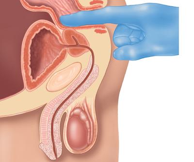 apice de la prostata
