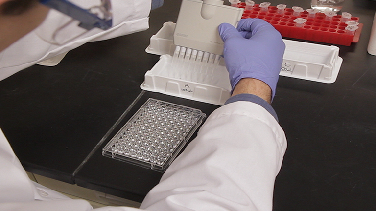 Enzyme-linked Immunosorbent Assay (ELISA) thumbnail