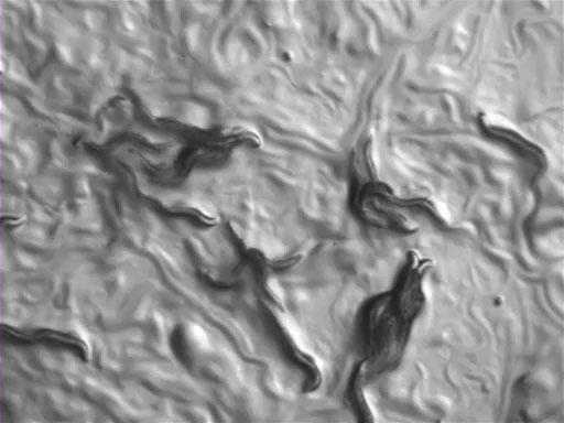 <em>C. elegans</em> Chemotaxis Assay thumbnail
