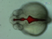 Zebrafish Brain Ventricle Injection thumbnail