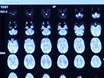 Making MR Imaging Child's Play - Pediatric Neuroimaging Protocol, Guidelines and Procedure thumbnail