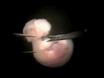Mouse Dorsal Forebrain Explant Isolation thumbnail