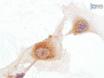 Isolatie en grootschalige expansie van volwassen humane endotheelcellen kolonievormende Progenitor Cellen thumbnail