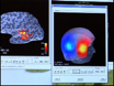 Functional Mapping with Simultaneous MEG and EEG thumbnail