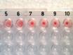 Fastställande av reaktivitet och titer av serum med hjälp av en hemagglutination analys thumbnail