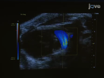 Murine Echocardiography and Ultrasound Imaging thumbnail