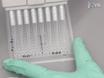 Un allèle spécifique Assay expression du gène pour l'épreuve la base fonctionnelle des associations génétiques thumbnail