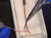 Gastrointestinal Motility Monitor (GIMM) thumbnail