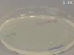 <em>C. elegans</em> Positive Butanone Learning, Short-term, and Long-term Associative Memory Assays thumbnail
