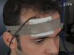 Electrode Positioning and Montage in Transcranial Direct Current Stimulation thumbnail