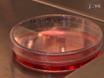 Misurazione della Cinetica di Trascrizione mRNA nelle cellule viventi singolo thumbnail