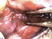 Cannulation of the Mouse Submandibular Salivary Gland via the Wharton's Duct thumbnail