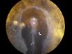 Placering Growth Factor-Coated Pärlor på tidiga embryon Stage Kyckling thumbnail