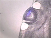 Laser Capture Microdissection of Mammalian Tissue thumbnail