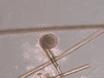 Isolation und Kultur von Neural Crest Stem Cells aus menschlichen Haarfollikeln thumbnail