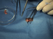 Mouse Model of Surgically-induced Endometriosis by Auto-transplantation of Uterine Tissue thumbnail