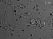 Fastställande av fagocyterande förmåga för klinisk Antibody prover thumbnail