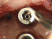 Epidural Intracranial Pressure Measurement in Rats Using a Fiber-optic Pressure Transducer thumbnail