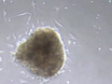 Isolation and Culture of Human Fungiform Taste Papillae Cells thumbnail