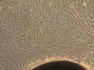 Skin Punch Biopsy Explant Culture for Derivation of Primary Human Fibroblasts thumbnail