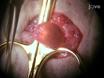 छोटे rodents में Cystometry का प्रयोग: मूत्राशय Chemosensation की एक अध्ययन thumbnail